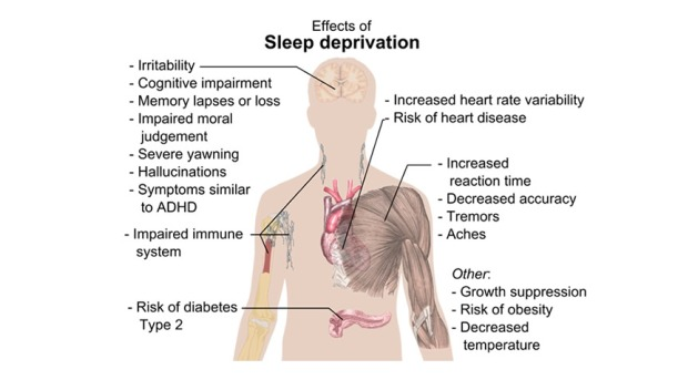 sleep_depravation